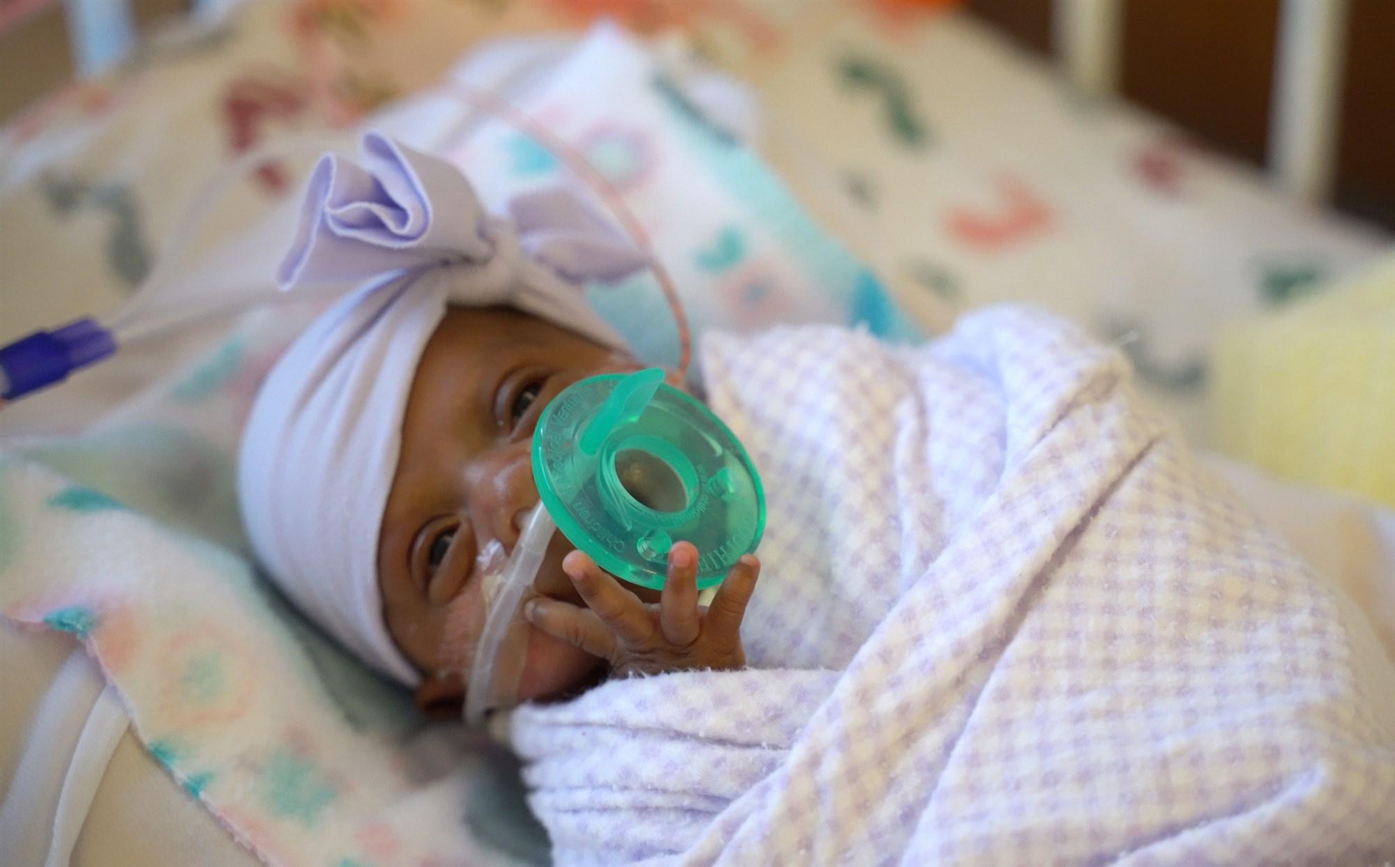 Sức sống diệu kỳ của em bé sơ sinh nhỏ nhất thế giới
