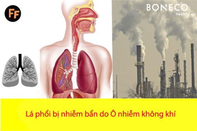 Cần sự chung tay đẩy lùi ô nhiễm không khí