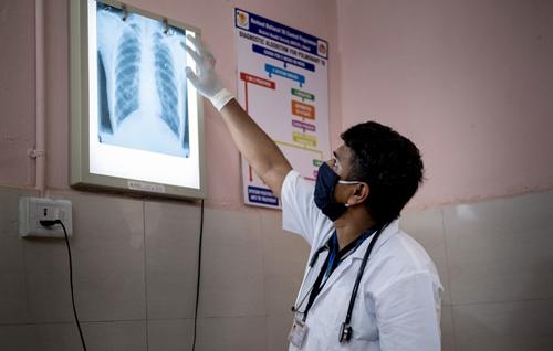 COVID-19 ảnh hưởng tới việc chăm sóc bệnh nhân lao