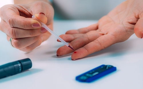 Có nên làm xét nghiệm kháng thể sau tiêm vaccine